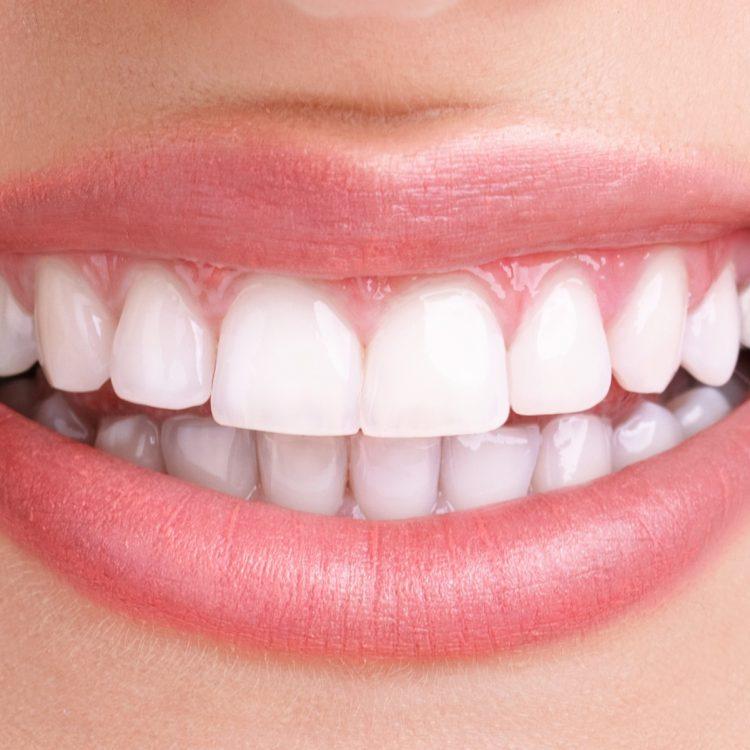 Healthy Teeth - Ideal Dental Care