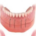 Ideal Dental Care