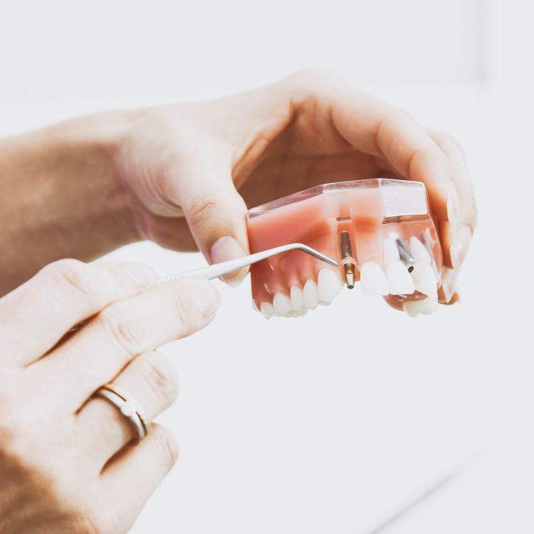 Dental Implants - Ideal Dental Care